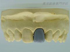 歯冠修復部門 最優秀賞 ~上顎左側中切歯のワックスアップ~