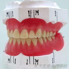 総義歯部門 最優秀賞 ~上下人口歯排列および歯肉形成~
