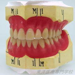 総義歯部門 最優秀賞 ~上下の人口歯排列および歯肉形成~