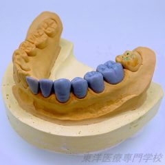 歯冠修復部門 最優秀賞 ~下顎左側中切歯から第一大臼歯の6本ワックスアップ~