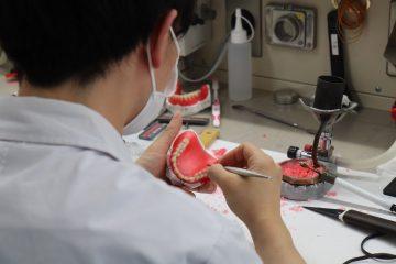 入れ歯を製作しています!